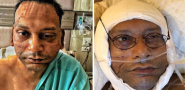 Bassbaba had faced a terrible road accident